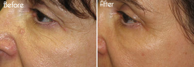 Aluma™ Skin Tightening Before and After