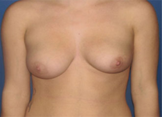 Best Breast Implants Bakersfield and Fresno