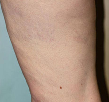 Laser Vein Treatment After