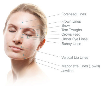wrinkle relaxer injection sites