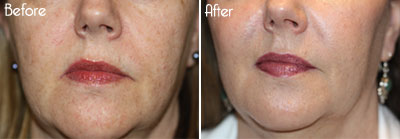 Laser Peel FX Before and After