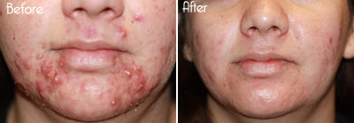 Levulan® Photodynamic Acne Therapy Before and After