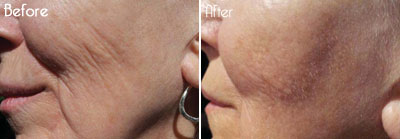 Micro-needling with MicroPen® Before and After