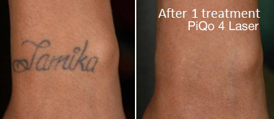 PiQo 4 Laser Before and After