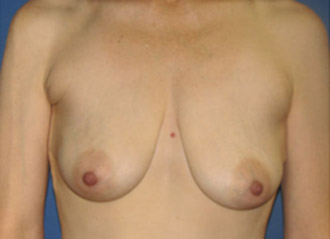 Best Breast Augmentation Bakersfield and Fresno