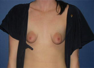 Tubular breasts