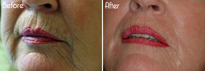 UltraPulse® Encore™ CO2 laser Before and After