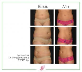 dr-knoetgen liposuction 1