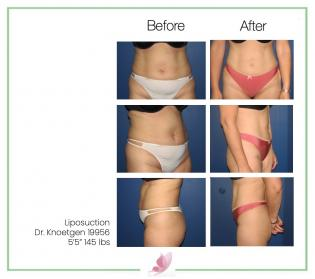 dr-knoetgen liposuction 2