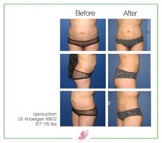 dr-knoetgen liposuction 3