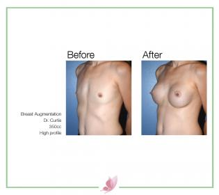 dr-curtis breast-augmentation 01