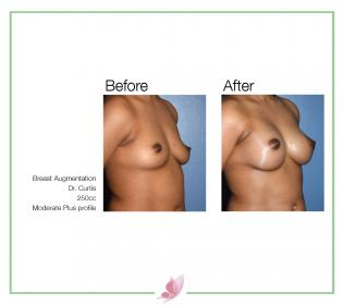dr-curtis breast-augmentation 02