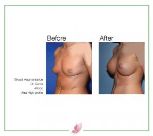 dr-curtis breast-augmentation 03
