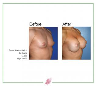 dr-curtis breast-augmentation 04