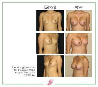 dr-knoetgen breast-augmentation 1