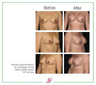 dr-knoetgen breast-augmentation 10