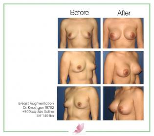 dr-knoetgen breast-augmentation 11