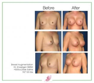 dr-knoetgen breast-augmentation 12