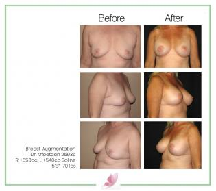 dr-knoetgen breast-augmentation 13