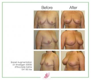 dr-knoetgen breast-augmentation 14