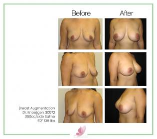 dr-knoetgen breast-augmentation 15
