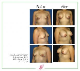 dr-knoetgen breast-augmentation 16