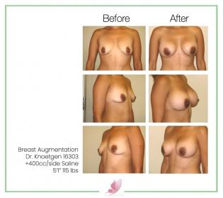dr-knoetgen breast-augmentation 17