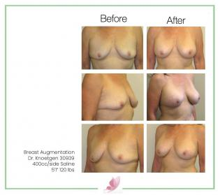 dr-knoetgen breast-augmentation 18