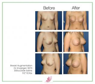 dr-knoetgen breast-augmentation 19