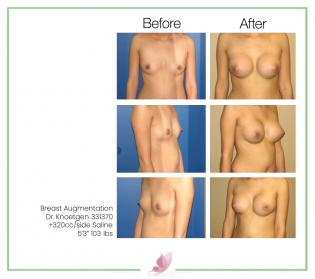 dr-knoetgen breast-augmentation 2