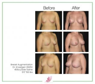 dr-knoetgen breast-augmentation 20