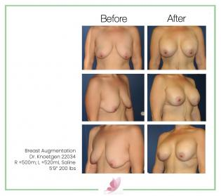 dr-knoetgen breast-augmentation 21