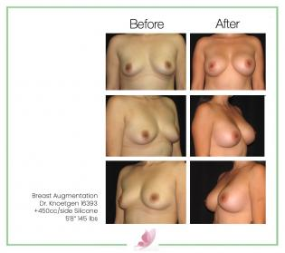 dr-knoetgen breast-augmentation 22