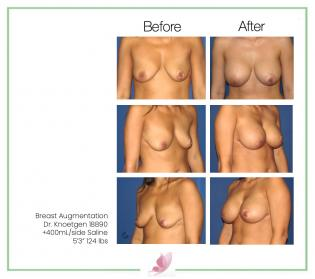 dr-knoetgen breast-augmentation 23