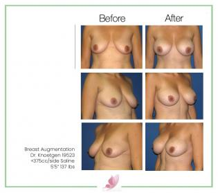 dr-knoetgen breast-augmentation 24