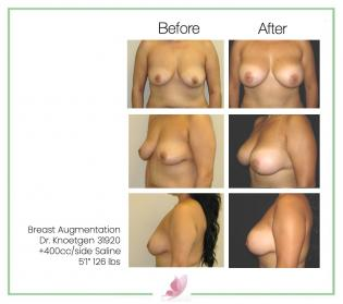 dr-knoetgen breast-augmentation 25