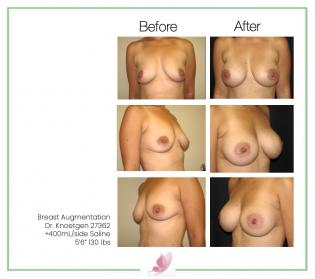 dr-knoetgen breast-augmentation 26