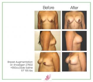dr-knoetgen breast-augmentation 27