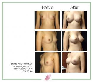 dr-knoetgen breast-augmentation 28
