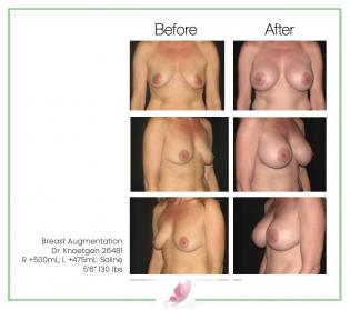 dr-knoetgen breast-augmentation 29