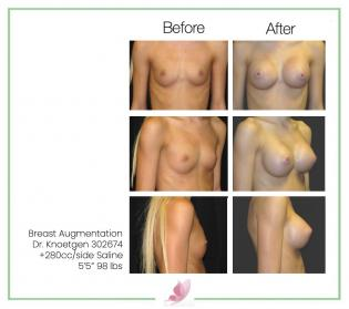 dr-knoetgen breast-augmentation 3