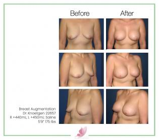 dr-knoetgen breast-augmentation 30
