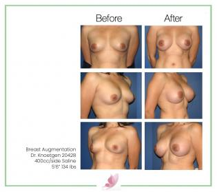 dr-knoetgen breast-augmentation 31