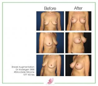 dr-knoetgen breast-augmentation 32
