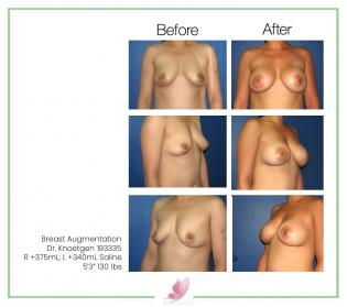 dr-knoetgen breast-augmentation 34