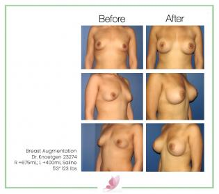 dr-knoetgen breast-augmentation 35