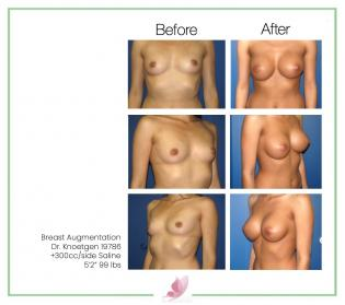 dr-knoetgen breast-augmentation 36