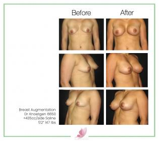 dr-knoetgen breast-augmentation 37