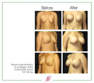 dr-knoetgen breast-augmentation 38