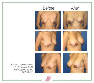 dr-knoetgen breast-augmentation 39